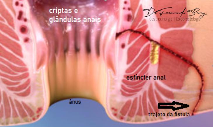 C:\Users\Dr Fernando - DELL\AppData\Local\Microsoft\Windows\INetCache\Content.Word\fistula 3.png