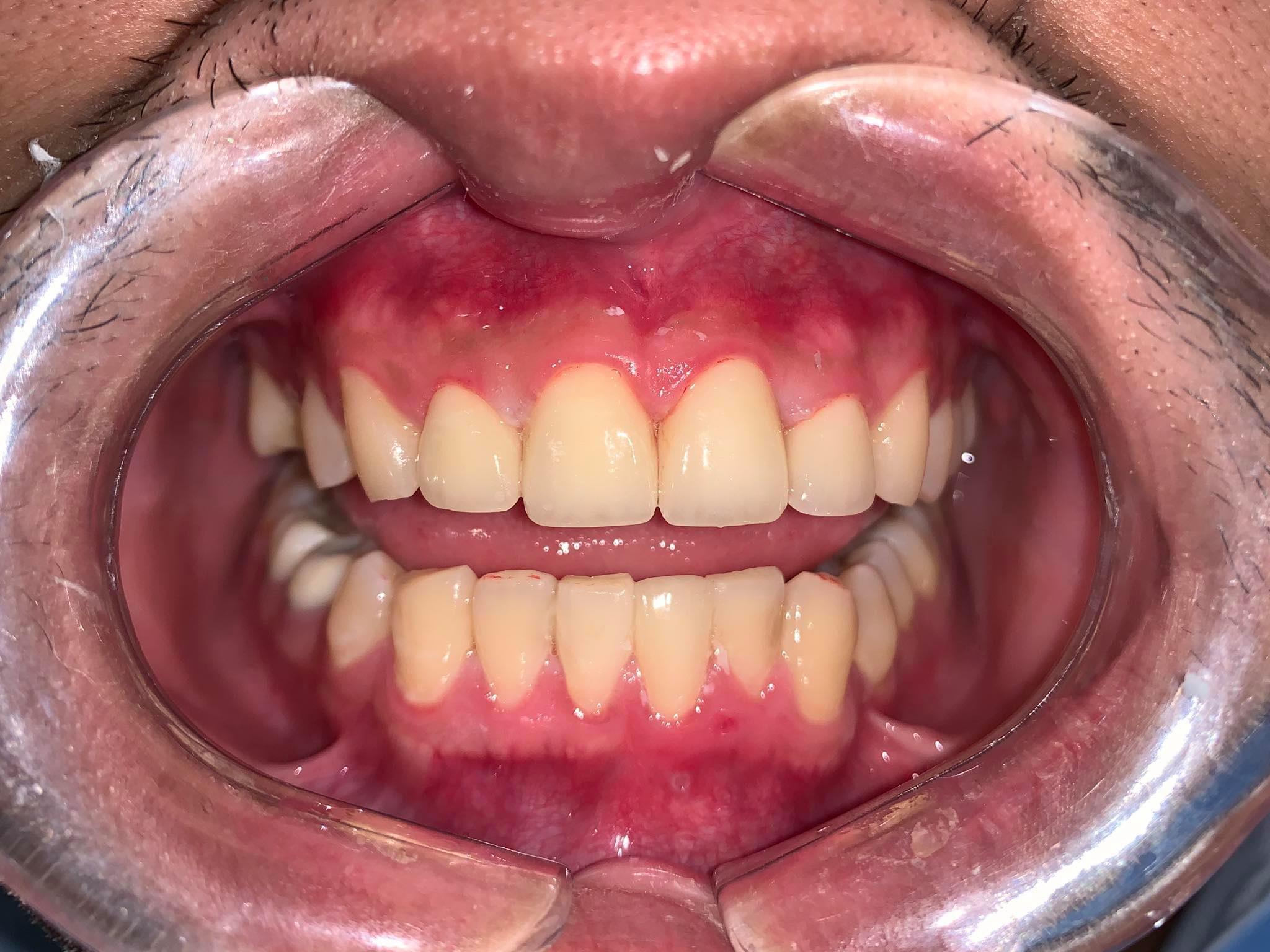 Chuyên gia bọc răng sứ Lê Thị Thái Hòa trực tiếp thực hiện các ca bọc sứ ở Hà Nội