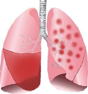 Figura 1: O pulmão esquerdo representa o padrão da pneumonia lobar. Nesse caso, a consolidação causada pela secreção produzida no parênquima pulmonar fica restrito a um lobo. O pulmão direito representa o padrão da broncopneumonia lobular. Nesse caso, a consolidação é irregular. Frequentemente, esse padrão é multilobular e bilateral. Fonte: Wikipédia