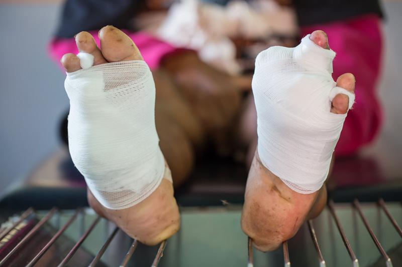 Dominando o manejo do pé diabético