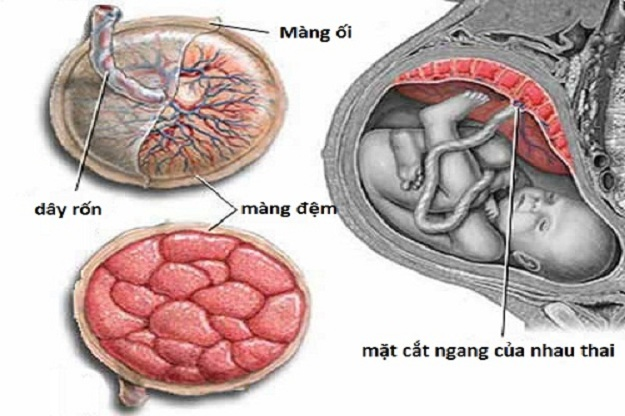 Bóc tách túi thai nhưng không ra máu
