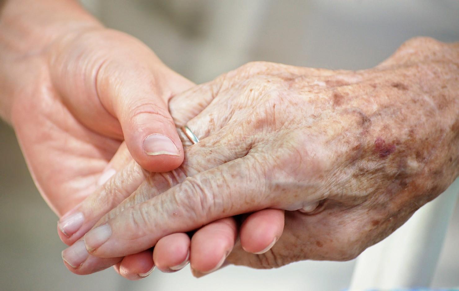 image of arthritic hands