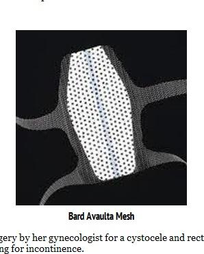 aaBard Avaulta mesh miklos and moore