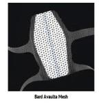 Bard Avaulta Mesh, Miklos and Moore website