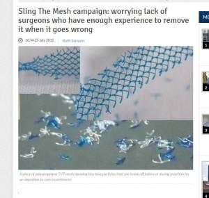 TVT mesh breaks apart, Wisbech Standard, UK