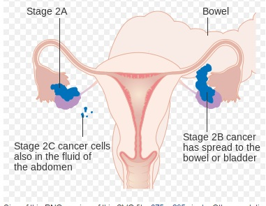Stage 2 Ovarian Cancer