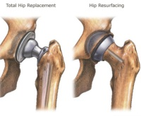 Two types of hip replacements