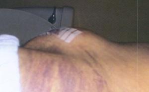 Post surgery #3