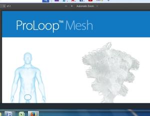 atrium proloop mesh