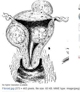Uterine Fibroids, 1913, WikiCommons