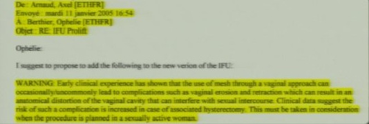 D11 Jan 11 2005  Dr. Arnaud suggests Mesh Erisoion needs to be taken into consideration in sex active women. He suggests put in IFU  500