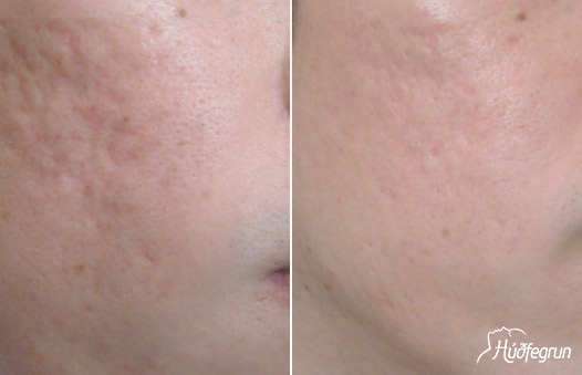 The Dermapen needles reach the dermis layer of the skin and stimulate the production of collagen and elastin.