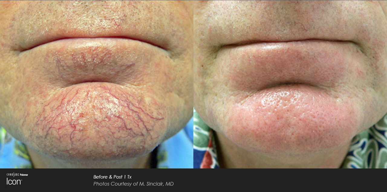 Scar-Removal-Before-and-After-Images