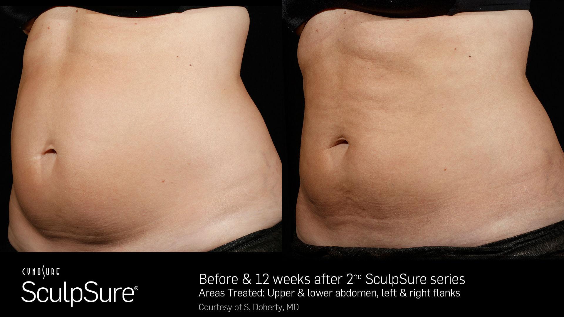 SculpSureBefore&After_SidebySide_Female