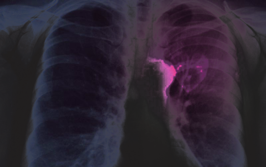 Tuberculosis in the lungs