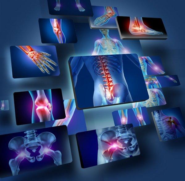 Đau nhức xương khớp có nhiều nguyên nhân gây ra