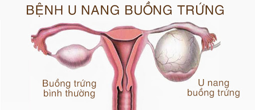 Bệnh u nang buồng trứng