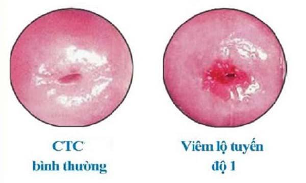 Hình ảnh viêm lộ tuyến độ 1