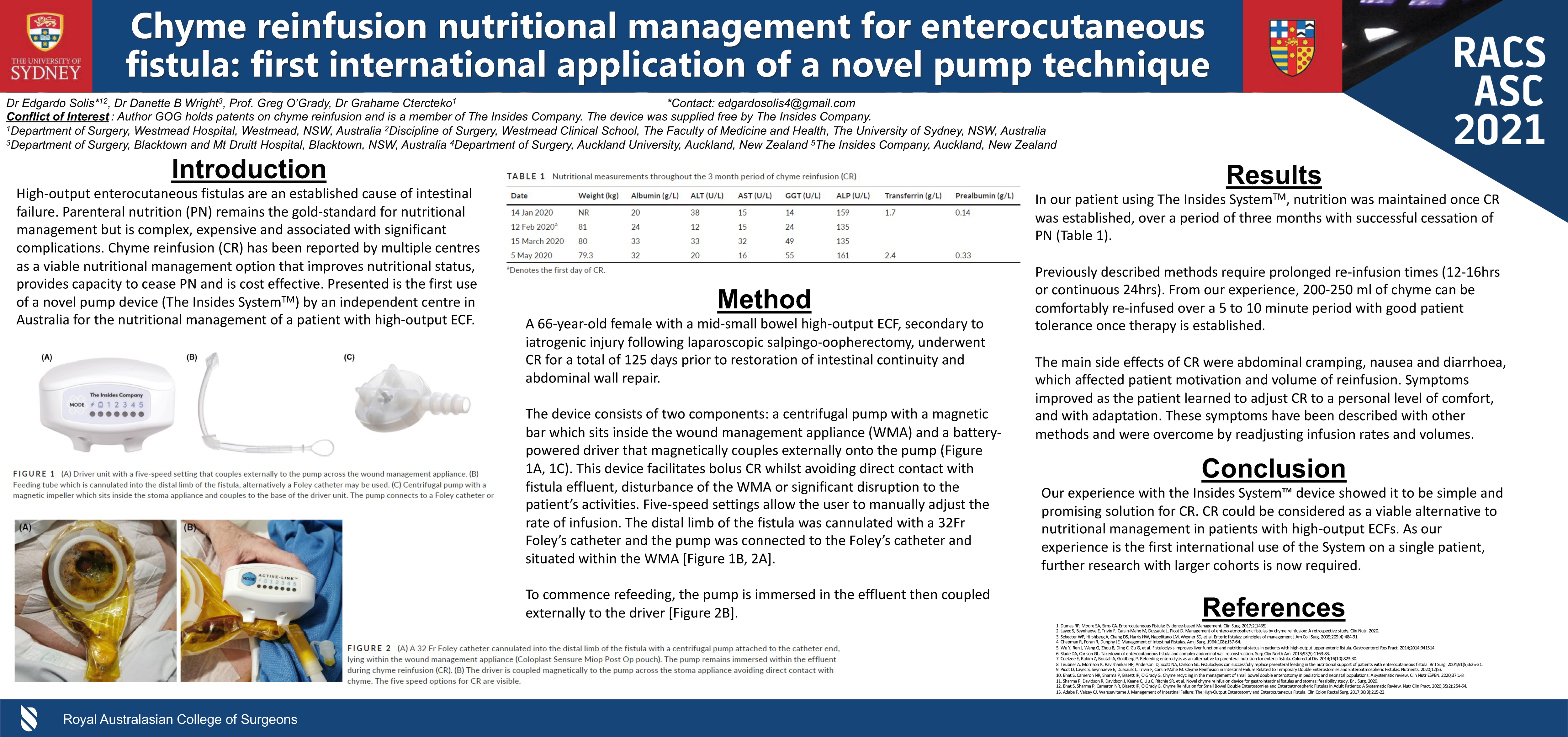 Chyme Reinfusion Nutritional Management for Enterocutaneous Fistula