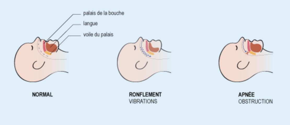 Explication schématique du ronflement et de l'apnée du sommeil