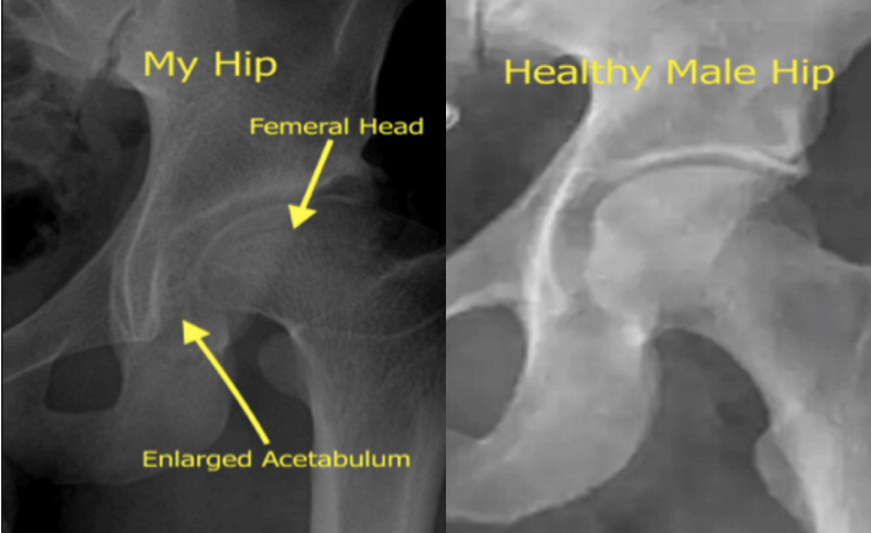 X-Rays of Will's hip injuries