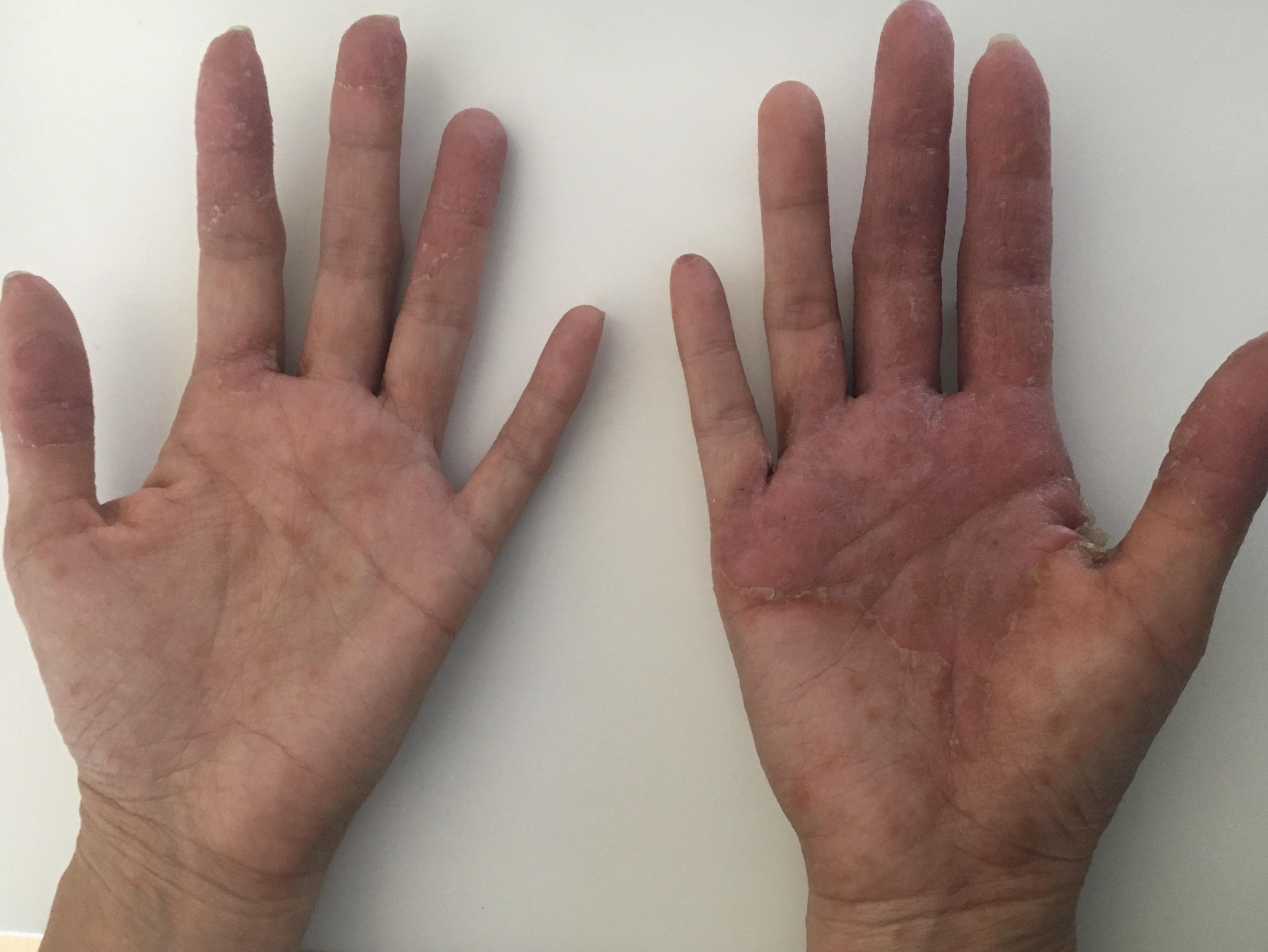 Core Programs Skin Health Before Treatment Image