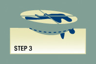 The Mohs Step-by-Step Process: Step 3