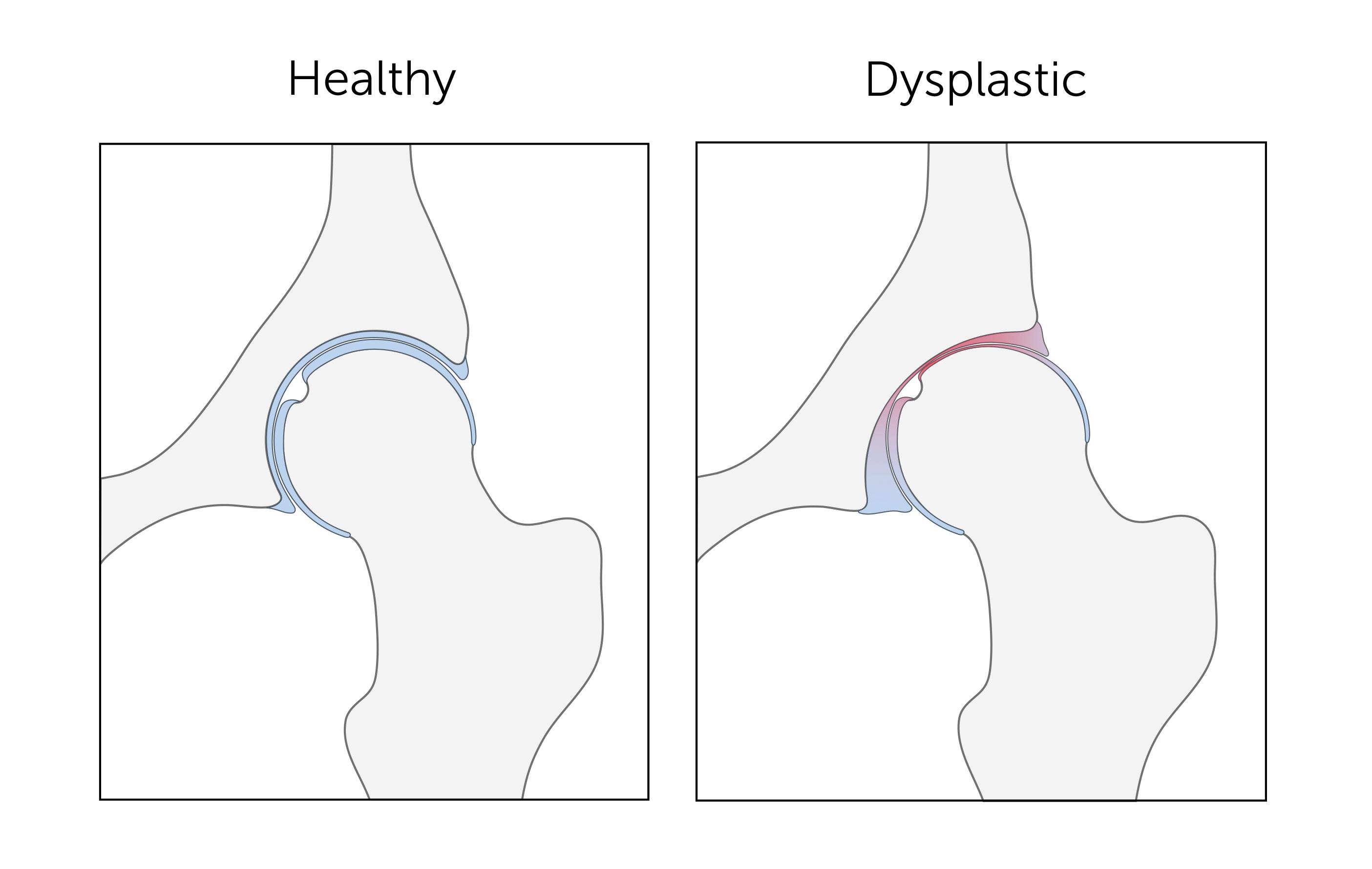 hip dysplasia, DDH