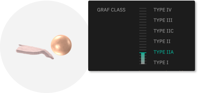 hip graf class
