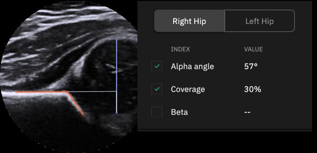 hip measurements
