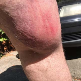 Picture of swollen, bruised, red welt on leg