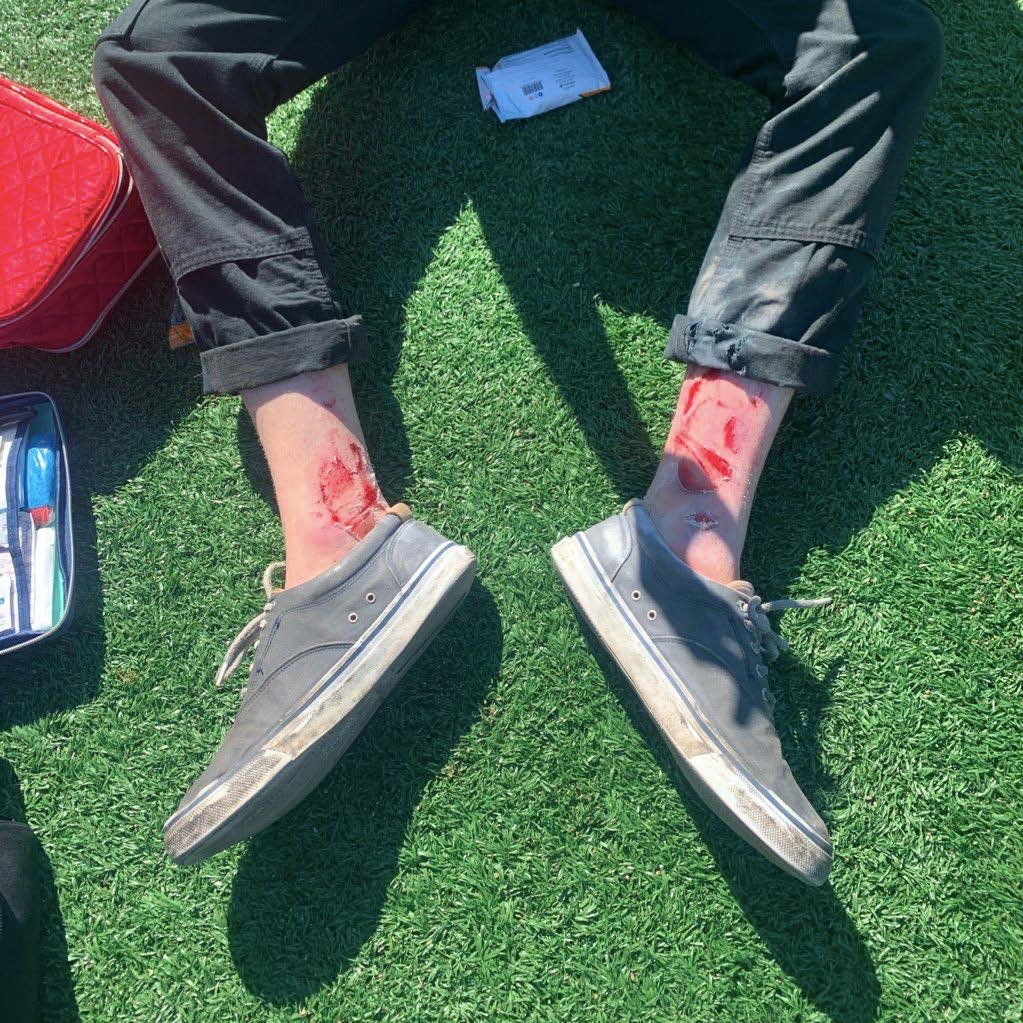Picture of ankle injury taking with shoes on