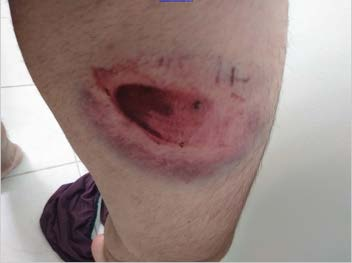 Close-up of large bloody welt on upper left thigh