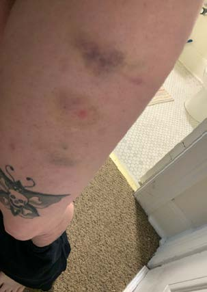 Picture of several bruises on upper left thigh