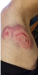 Picture of large bruise 2