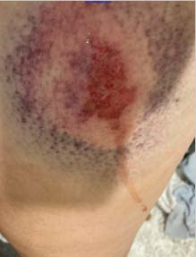 Bruise caused by blast ball 2