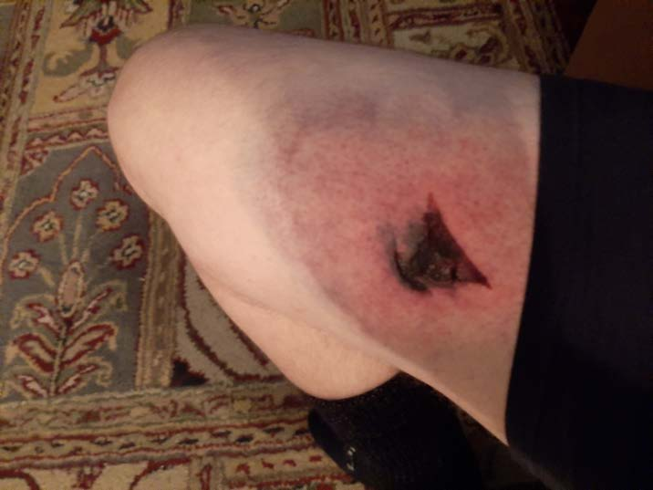 Blast ball injury to the thigh