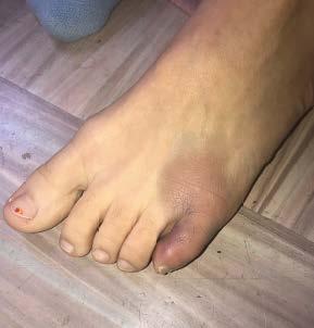 Toe injury close-up