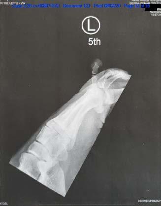 X-ray image of broken toe