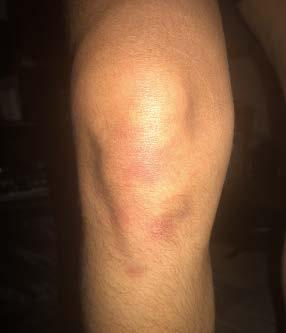Close-up of knee injury
