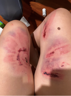 Close-up of injuries on thighs