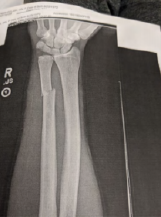 X-ray of arm, showing a fracture