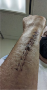 Image of victim's arm after surgery