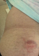Picture of bruise
