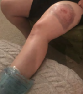 Picture of large bruise on left thigh