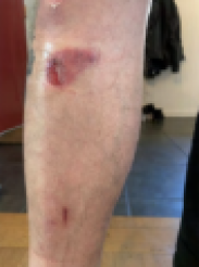 Picture of laceration and bruise on knee
