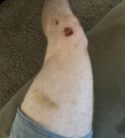 Laceration and bruise on left leg