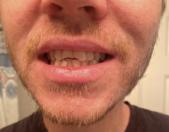 Broken front teeth