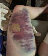 Bruise covering whole inner thigh