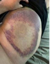 Bruise covering whole hip